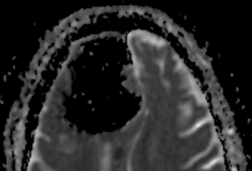 Doctors stunned to find huge air pocket where part of man's brain should be
