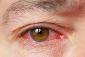 Is pink eye a symptom of Coronavirus? Eye doctors say conjunctivitis could be rare early sign